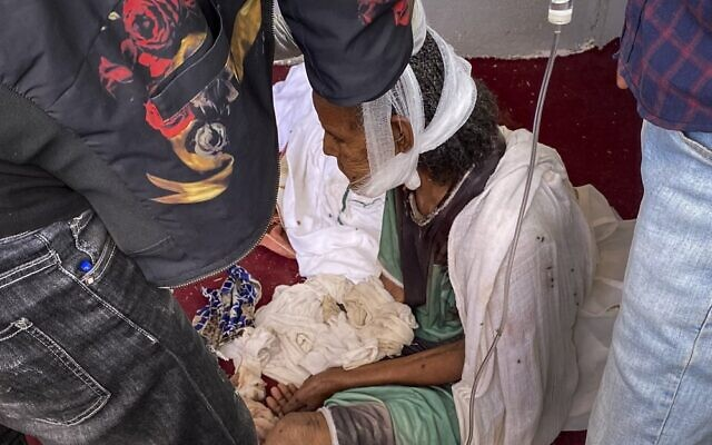 An elderly woman who fled to the city of Axum in the Tigray region of Ethiopia to seek safety sits with her head bandaged after being wounded during an attack on the city, November 30, 2020. (AP Photo)