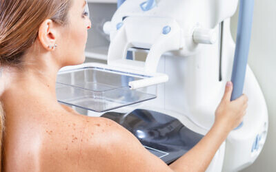A woman undergoing a medical mammography scan. (jovannig via iStock by Getty Images)