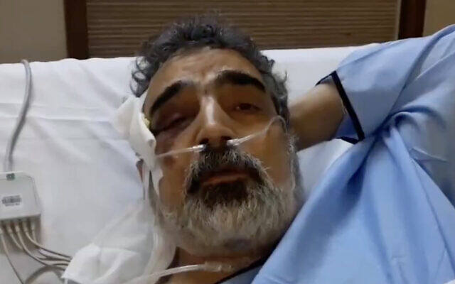 Behrouz Kamalvandi, spokesman for the Atomic Energy Organization of Iran, is interviewed from his hospital bed on April 12, 2021, after being injured the day before in a reported fall at the Natanz nuclear facility. (Screen capture: Twitter)