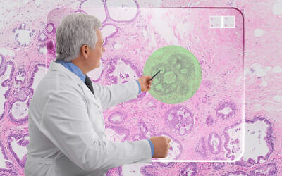 AI technology developed by Ibex highlights in green a cancer cell in a biopsy (Courtesy)