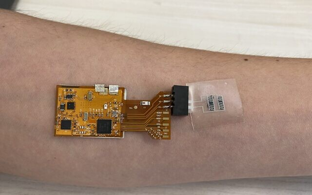 A prototype of the new Israeli tuberculosis-detecting skin patch (courtesy of the Technion-Israel Institute of Technology)
