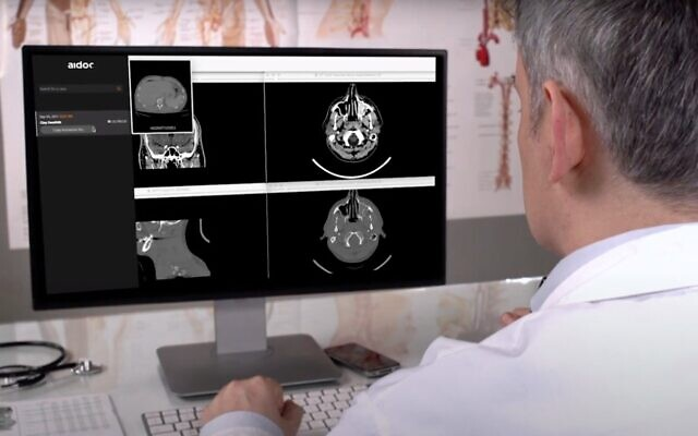 Aidoc's AI-based technology helps radiologists read scans (Guy Schreiber)
