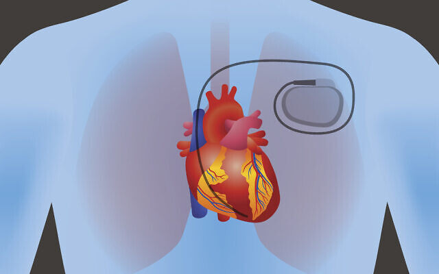 Illustration of a pacemaker in the human body (chombosan via iStock by Getty Images)
