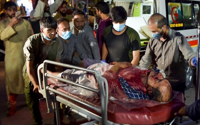 Volunteers and medical staff bring an injured man for treatment after two powerful explosions outside the airport in Kabul on August 26, 2021. (Wakil KOHSAR / AFP)
