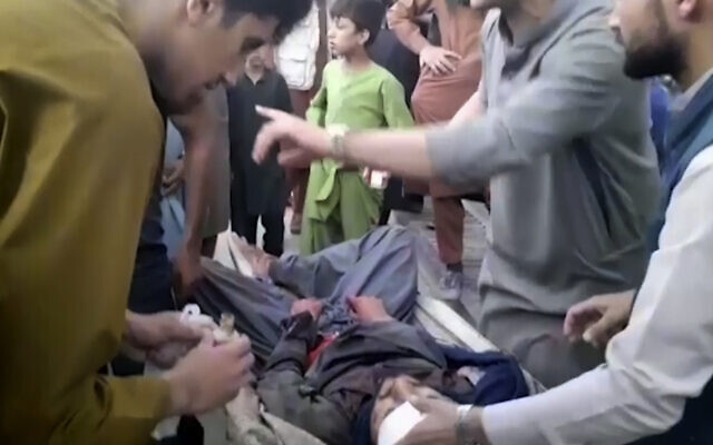 In this frame grab from video, people attend to a wounded man near the site of a deadly explosion outside the airport in Kabul, Afghanistan, August 26, 2021. (AP Photo)
