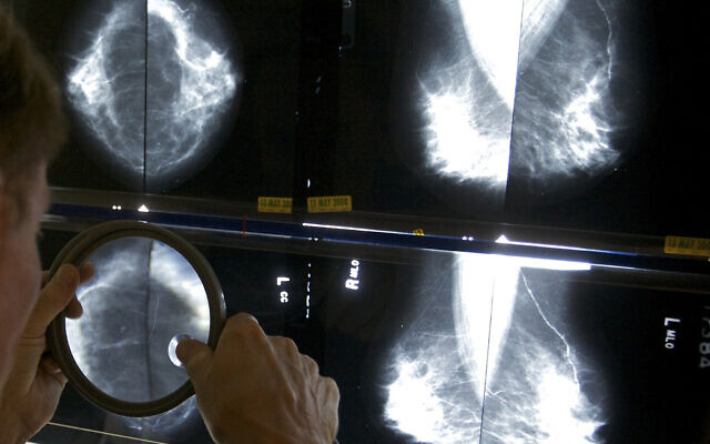 A radiologist uses a magnifying glass to check mammograms for breast cancer in Los Angeles, on May 6, 2010. (AP Photo/ Damian Dovarganes, File)