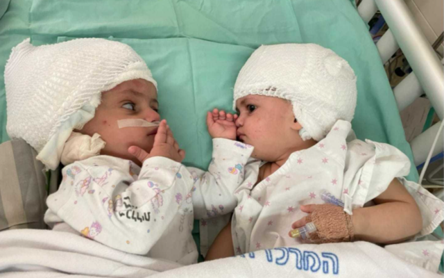 Conjoined twins, newly separated at Soroka University Medical Center in Beersheba, look at each other for the first time, on September 5, 2021. (courtesy of Soroka University Medical Center in Beersheba)